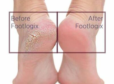 Footlogix before after